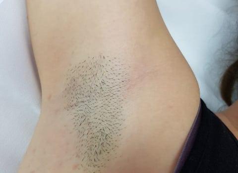 IPL uklanjanje dlaka s pazuha