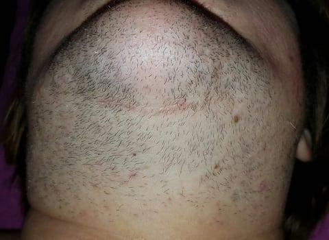 IPL uklanjanje dlaka na bradi