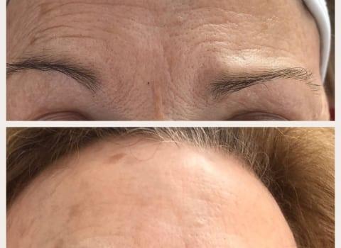 IPL tretman pomlađivanja čela