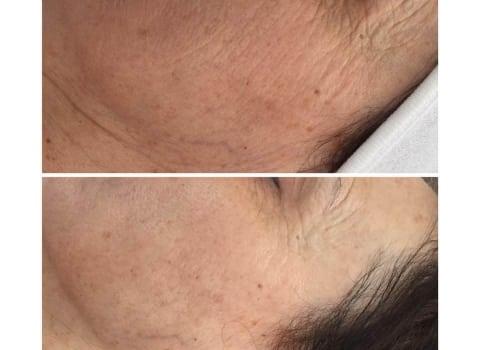 IPL tretman pomlađivanja lica