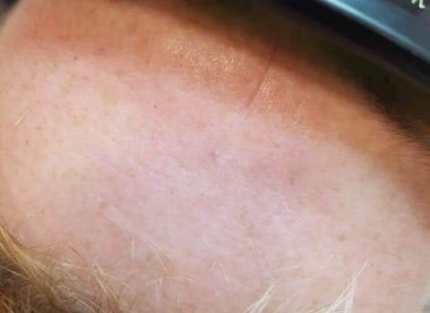 IPL uklanjanje kapilara na čelu