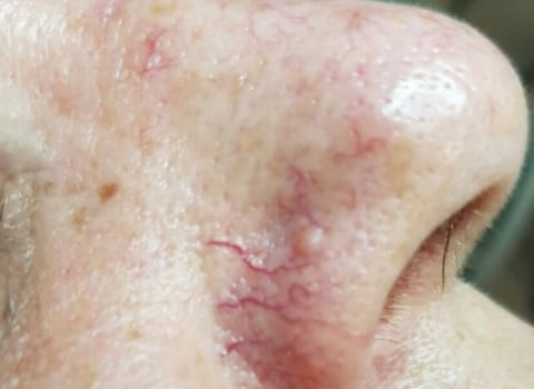 IPL uklanjanje kapilara na nosu
