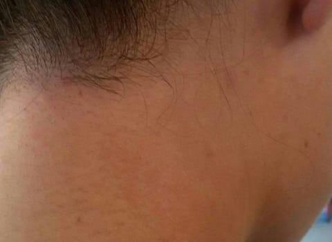 IPL uklanjanje dlaka na vratu
