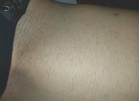IPL uklanjanje dlaka na bikini zoni